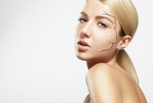 woman dry skin